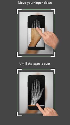android Xray Scan Blague Screenshot 7