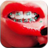 Download Braces Booth APK on PC