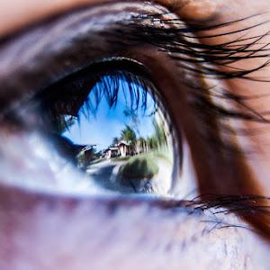 Minsay eye pix.jpg