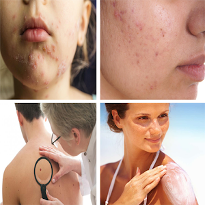 Treatment of skin diseases