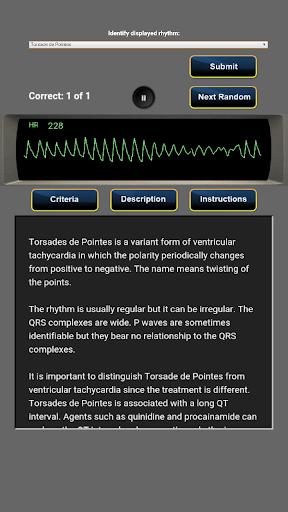 ACLS Rhythm Quiz - screenshot