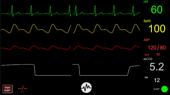 Simpl - Simulated Patient Monitor screenshot for Android