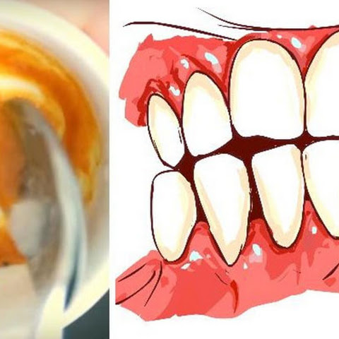 THIS HOMEMADE TOOTHPASTE REVERSES GUM DISEASE AND WHITENS TEETH
