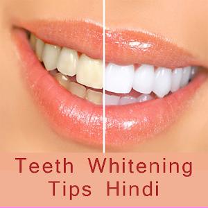 Teeth whitening tips-hindi for PC-Windows 7,8,10 and Mac