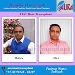 Hair Transplant Clinic in Punjab