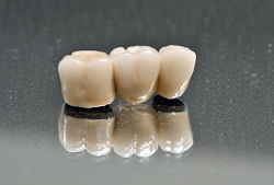 Dental Crowns And Bridges | Enfield