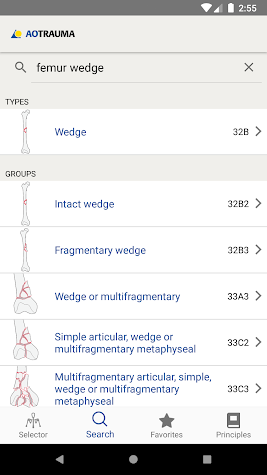 AO/OTA Fracture Classification Screenshot