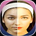 App تجميل الوجه في الصور APK for Kindle