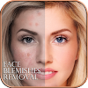 Face Blemishes Removal