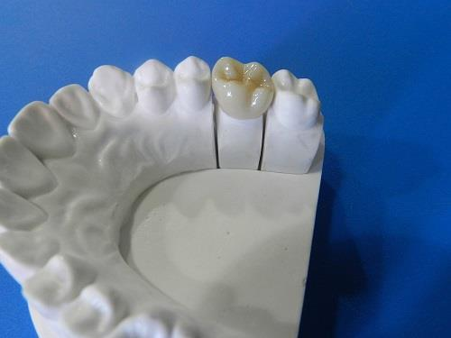 Zirconia Crown And Bridge