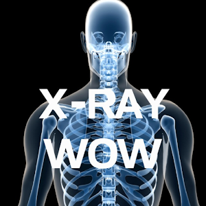X-RAY WOW For PC / Windows 7/8/10 / Mac – Free Download