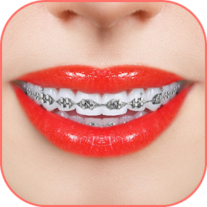 Braces 2018 For PC / Windows 7/8/10 / Mac – Free Download