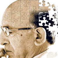 Post image for Alzheimer's Disease: Here Is What You Need To Know