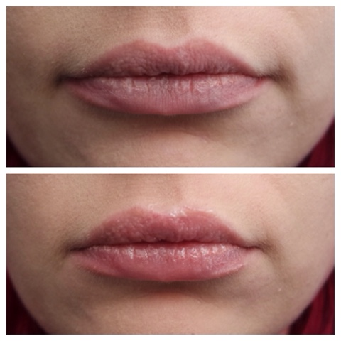Transformulas : Lip Volume