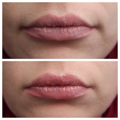 Transformulas : Lip Volume