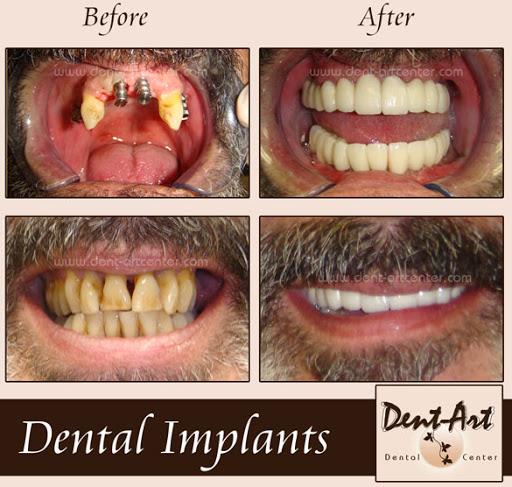 Algodones Dental Referral - Google+