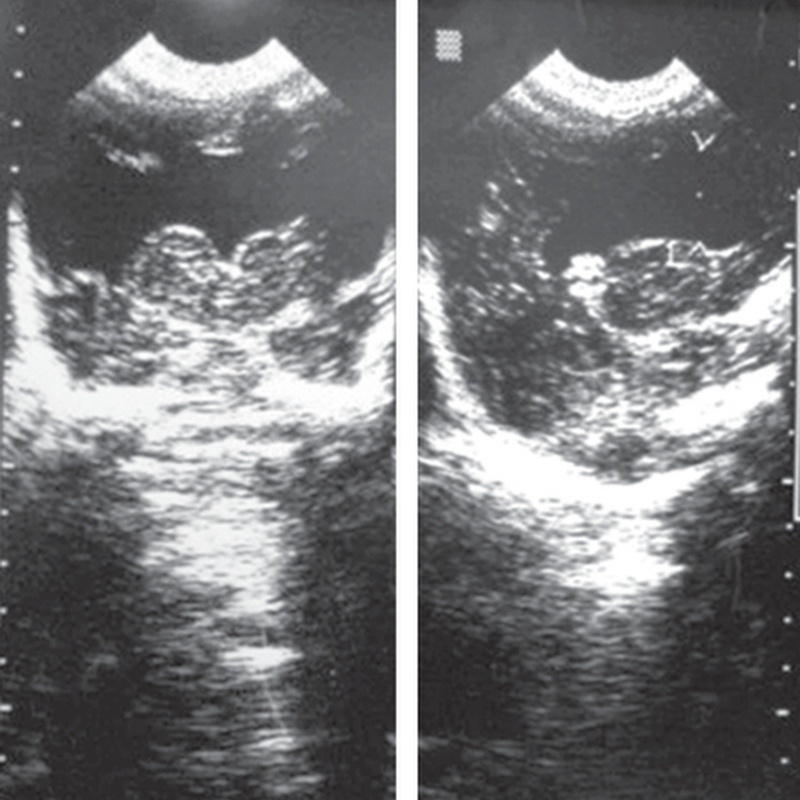 A full-term female newborn with multiple congenital anomalies.