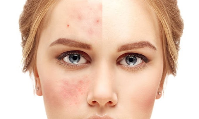 How to remove pimple marks:Can toothpaste remove pimple marks?
