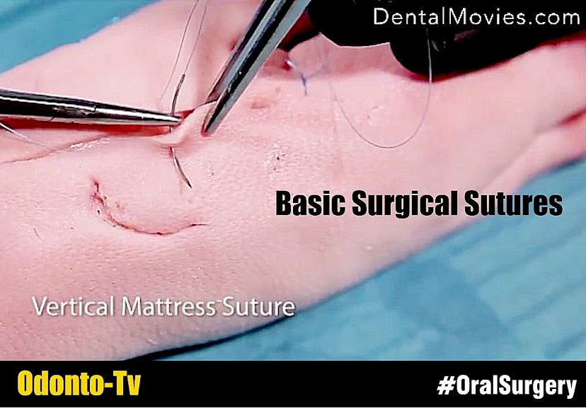 Basic-surgical-sutures