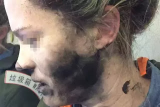 How Wireless Headphone Caught Fire on Woman's Head While Inside Plane