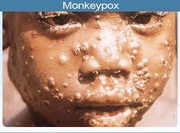 Ways To Prevent Monkeypox… as disease spreads to 7 states