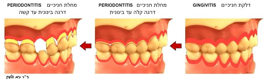 """דלקת חניכיים ומחלת חניכיים: gingivitis and periodontitis - ד""""ר גיא וולפין, אסתטיקה דנטלית"""