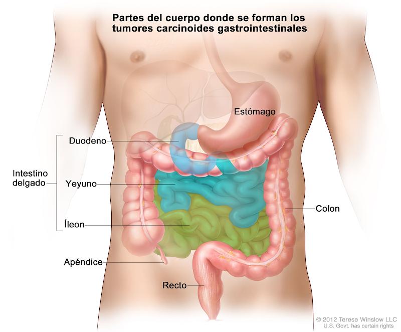 Tumores carcinoides gastrointestinales