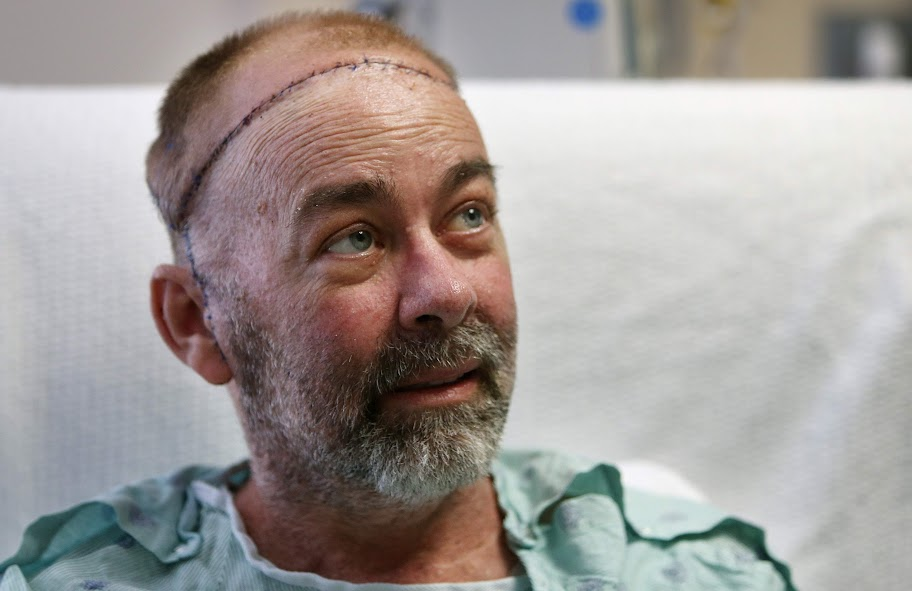 James Boysen 55 is the world's first skull and scalp transplant recipient
