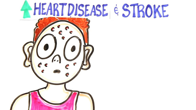 steroids increase the risk of heart disease and stroke