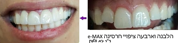 """שיני ארנבת, ציפויי חרסינה e-max : אסתטיקה דנטלית, ד""""ר גיא וולפין"""
