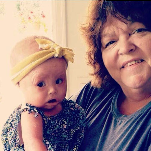 Harper who has harlequin Ichthyosis and her grandmother