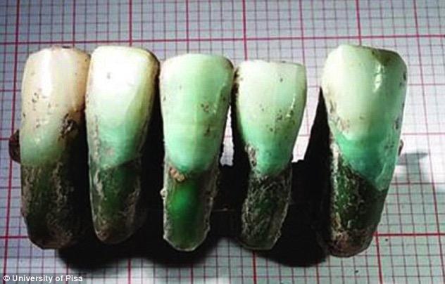 Medival Denture.jpg