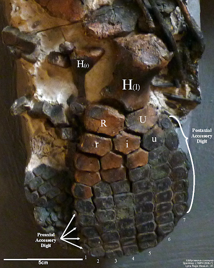 LYMPH 2006-72 Forefin with labelled anatomy.