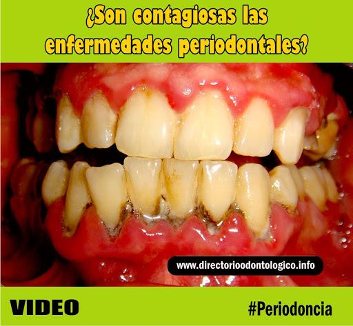 enfermedad-periodontal-contagio