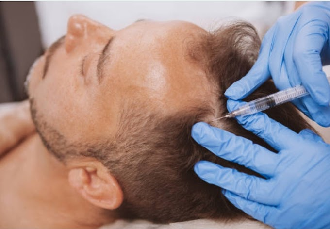 PRP treatment: successful treatment for Hair fall problem.