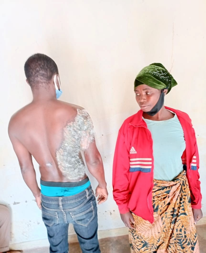 20-year-old woman sentenced to 17 years imprisonment with hard labour for pouring hot water on her husband
