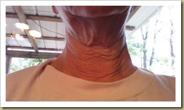 Neck after using Face Life with Activator - Thoughts in Progress.