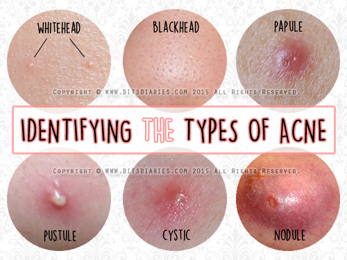 understanding the types of acne — whitehead, blackhead, papule, Skeleton