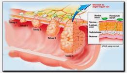 peringkat barah usus
