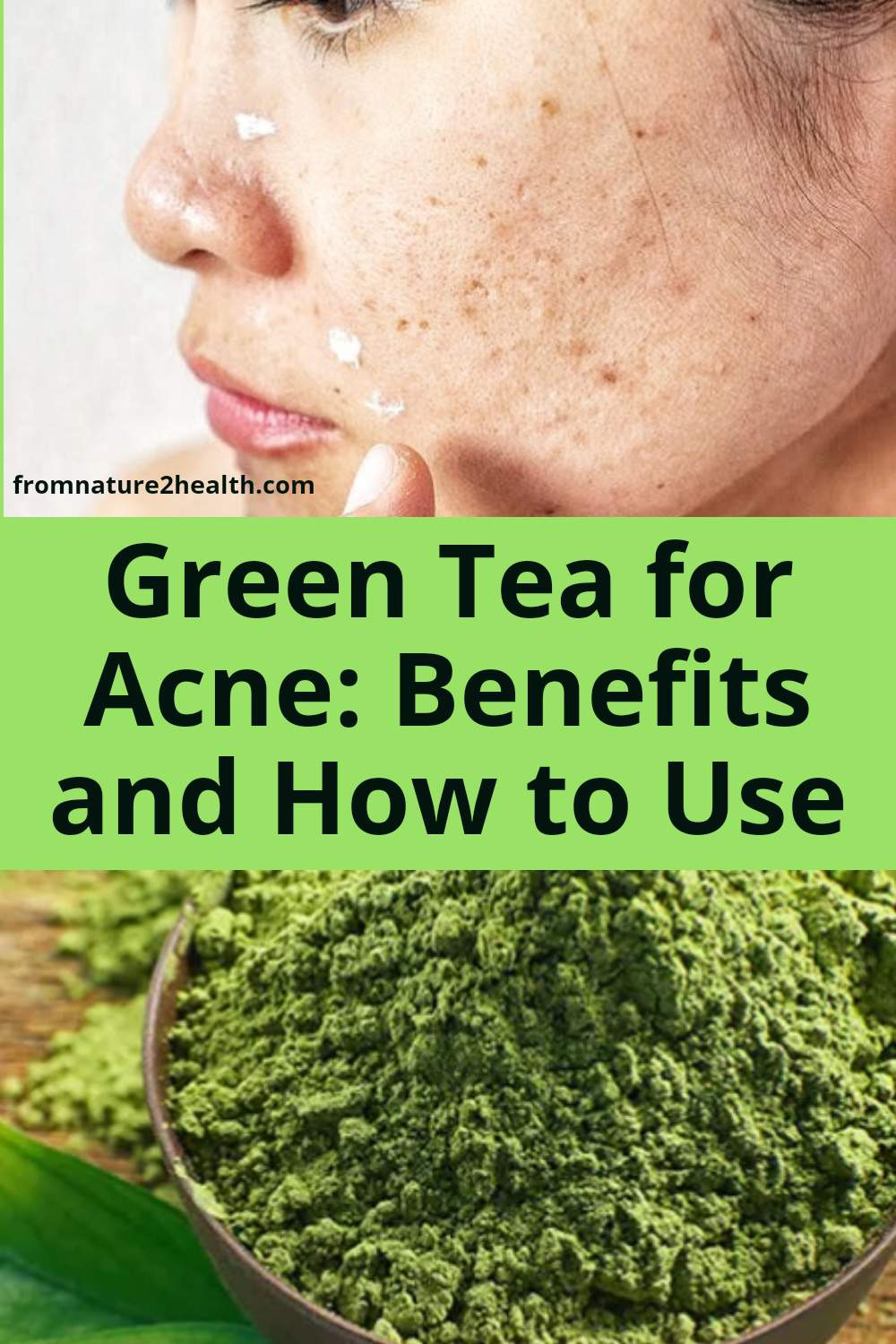 Green Tea for Acne: Benefits and How to Use