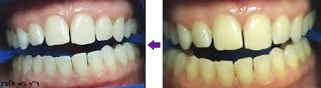 """הלבנת שיניים בעזרת מיכשור זום ZOOM תוך שעה במרפאה- ד""""ר גיא וולפין, אסתטיקה דנטלית"""