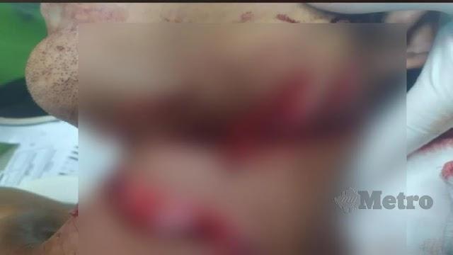 Cuba lari dari PKPD: Pemuda cedera motosikal langgar kawat duri