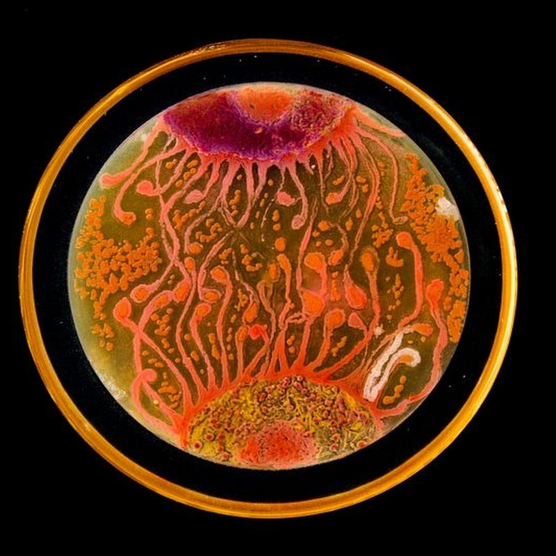 Bacterial Art on Petri Dishes