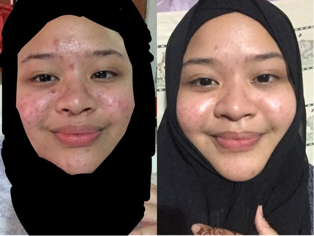 Listen To My Thoughts Carefully My Acne Journey