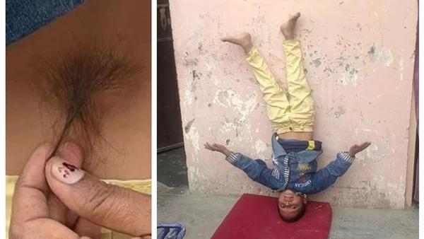 الناس تعبده .. طفل هندي 6 سنوات مولود بـ ذيل في ظهره