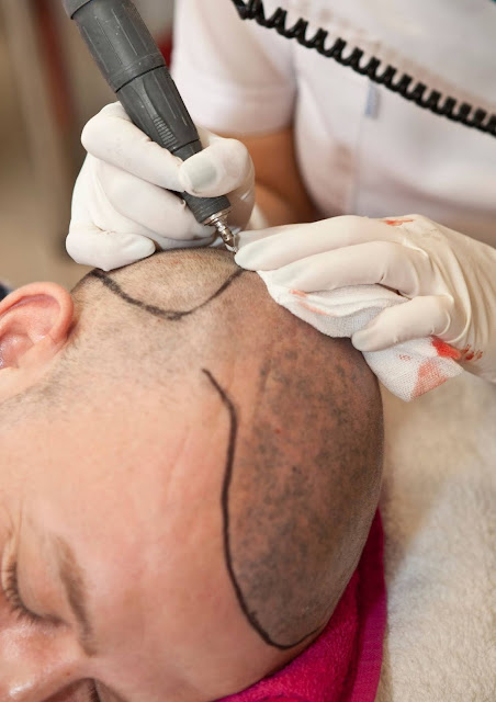 Planning for Your Hair Transplant Surgery