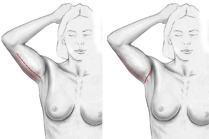 lifting de la face interne des bras