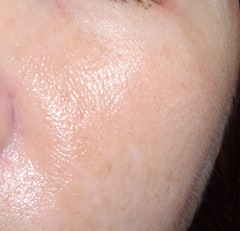 other cheek after using EverClear VC Vitamin C Serum 20% for one month