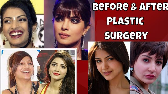 Checkout: Before and After Plastic Surgery PHOTOS of Popular