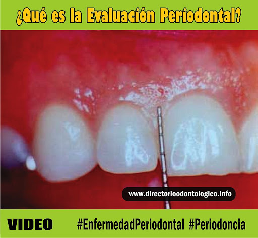 evaluacion-periodontal